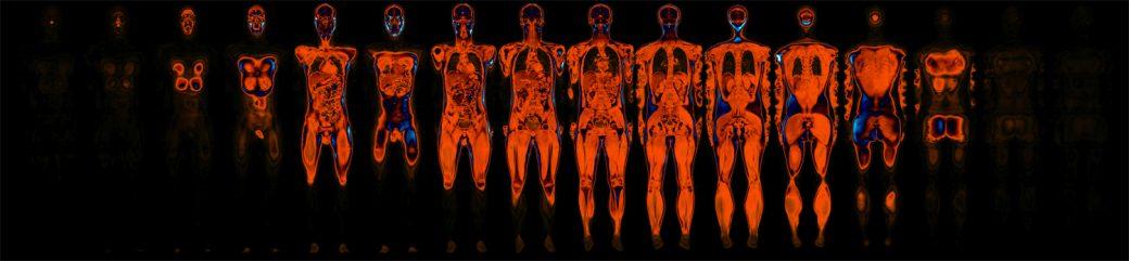 MRi+Life+Drawing-Perfusion